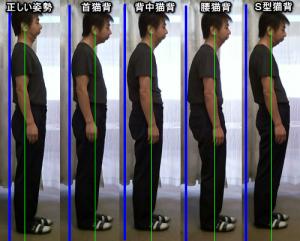 猫背の比較表