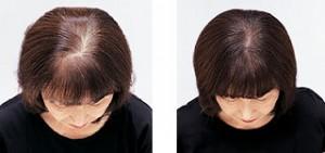 頭皮の地肌の比較