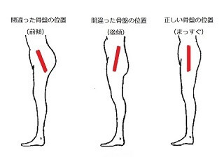 骨盤の位置