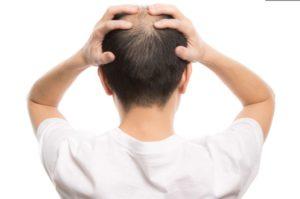 薄毛に悩んでいる男性に読んでほしい本「ハゲを着こなす」