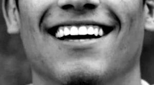 白すぎる歯にはご用心!過ぎたるは猶及ばざるが如し