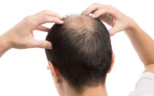 頭皮マッサージはやり方を間違えると逆効果になる!